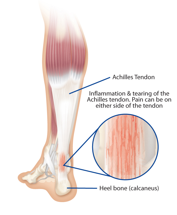 Pedistep Orthotics - Treating Achilles Tendonitis